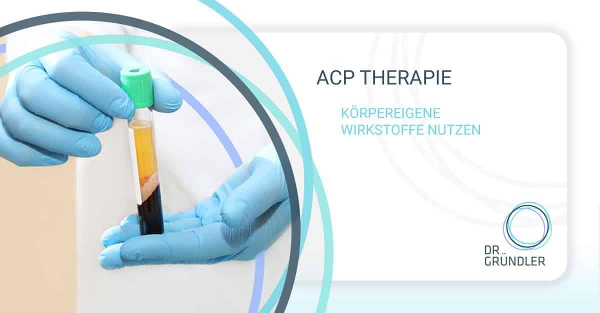 """Ein Laborant hält eine Ampulle mit körpereigenen Blut, das Blut ist bereits für die ACP Therapie separiert. Daneben der Schriftzug """"ACP Therapie - Körpereigene Wirkstoffe nutzen"""" und das Logo von Dr. Gründler"""