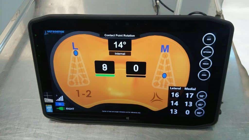 Monitor zur Einstellung des Sensor Knie 4.0