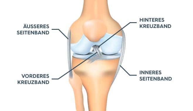 Schaubild eines Kniegelenks mit eingezeichneten Bestandteilen - Äußeres Seitenband, Vorderes Kreuzband, Hinteres Kreuzband, Inneres Seitenband