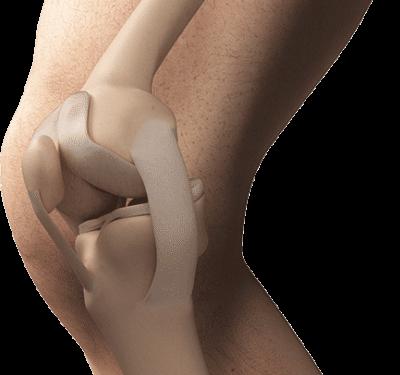 3D Aufnahme eines männlichen Knies mit eingezeichnetem Kniegelenk
